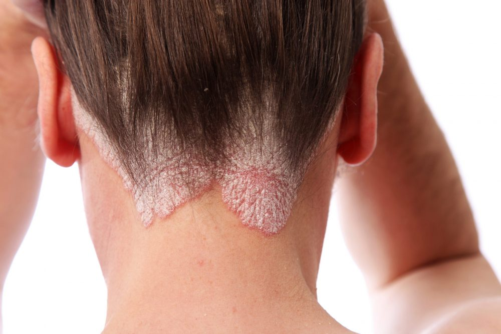 woman showing her psoriasis on the hairline