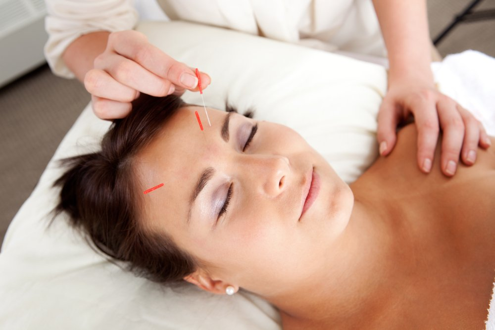 A woman hving facial acupuncture as part of a beauty therapy