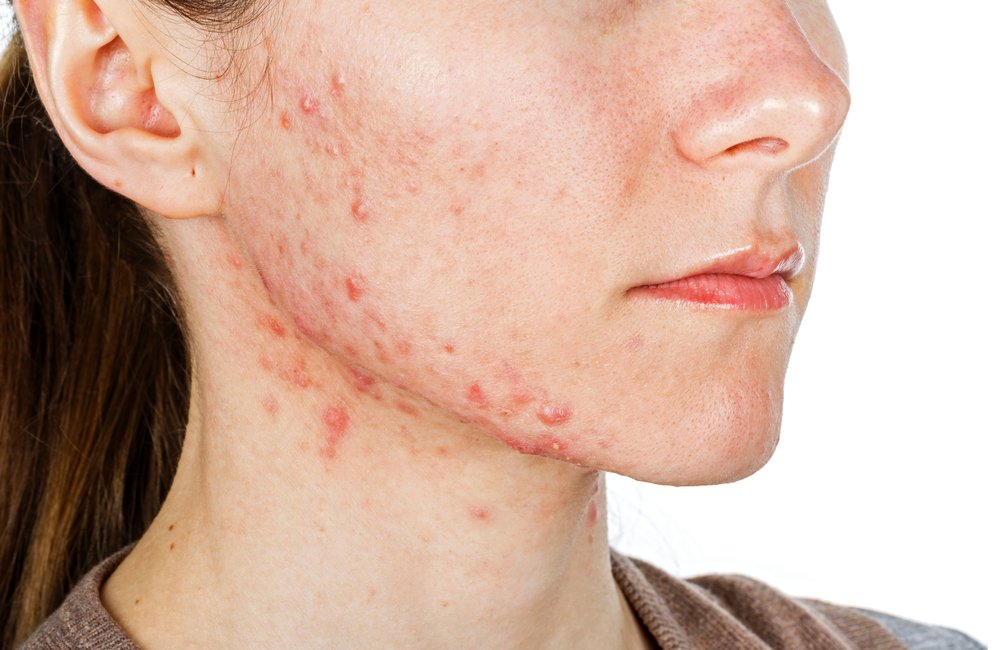 A side-on view of a young woman with acne.