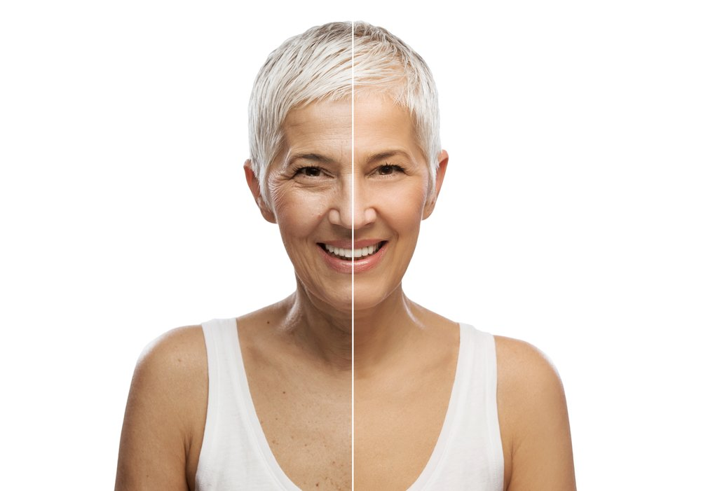 An attractive older woman. The 2 sides of here face showing the effects of high and low collagen levels